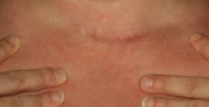litteken